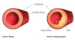 salur darah jantung